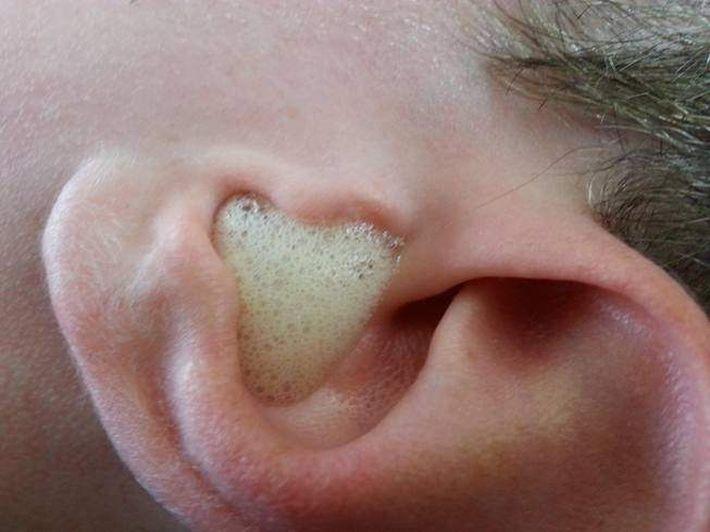 оттенком коричневого, вытаскивает пробку из уха перекисью водорода щиты дома